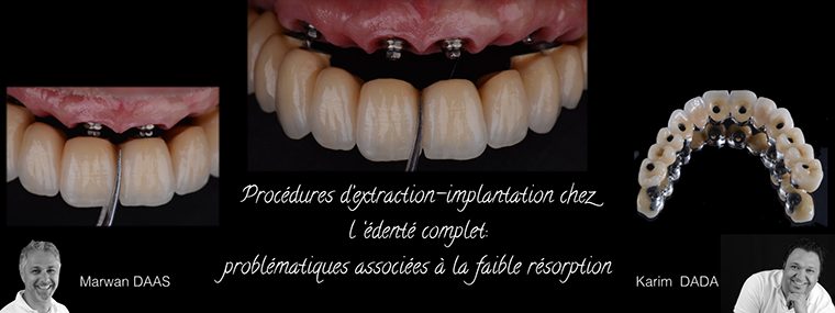 Soirée Harmik - Pratis Dental